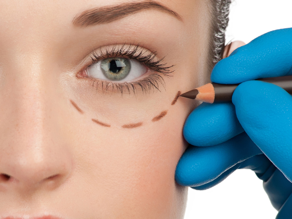 http://www.novanorte.com/Cirugía%20de%20Parpados